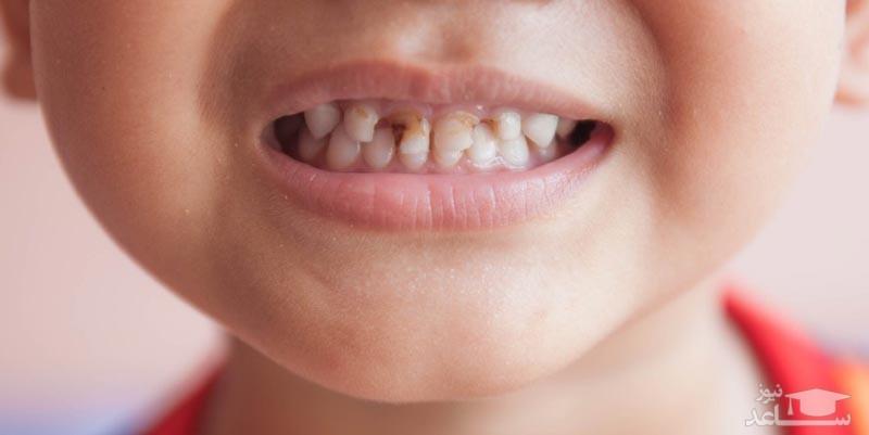 ترمیم پوسیدگی دندان بدون پر کردن