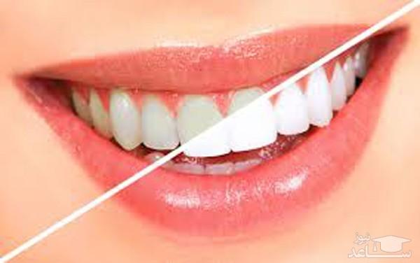 دندان های سفید از سلامت بالایی برخوردار نیستند !