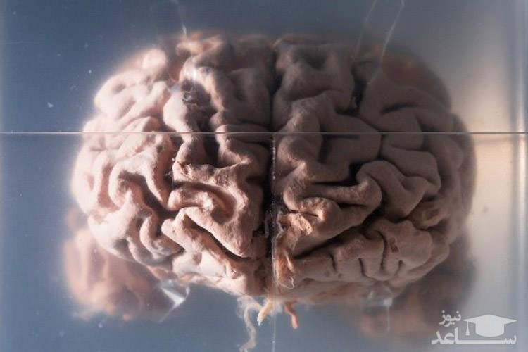 چرا مغز انسان بزرگتر است؟