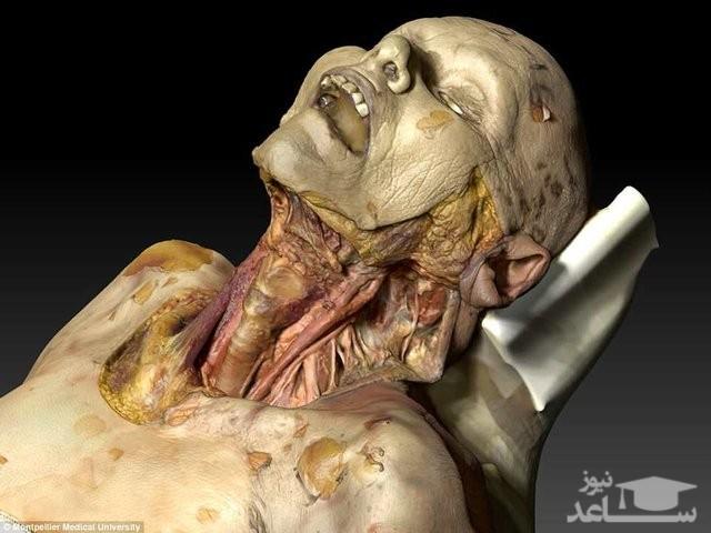 (فیلم) کالبد شکافی بر روی جسد مجازی