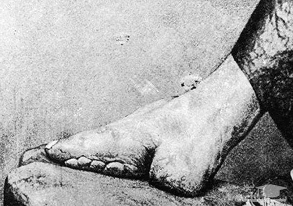 شکستن پا برای مد