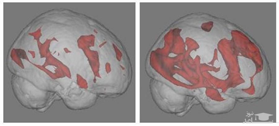 اینترنت و تاثیر آن بر مغز