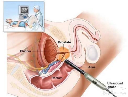 غده پروستات در مردان