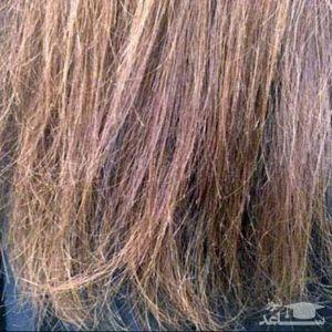 چه کارهایی موجب ایجاد موخوره در مو میشود؟