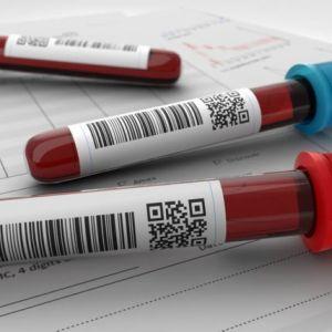 نمونه کارنامه و ظرفیت پذیرش رشته هماتولوژی (خون شناسی) در مقطع کارشناسی ارشد