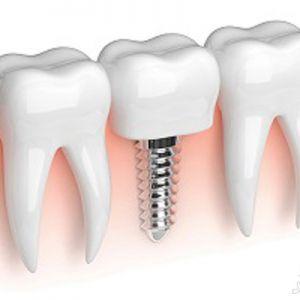 ایمپلنت دندانی برای چه کسانی مناسب نیست؟