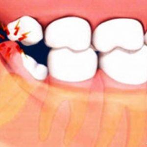 حتما باید دندان عقل کشیده شود؟