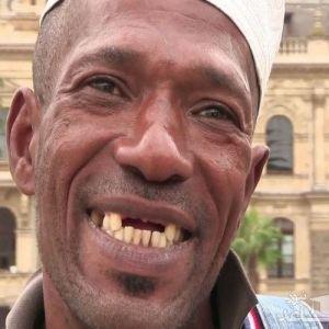 کشیدن دندان های جلویی در آفریقا ! یک آیین، مد و یا طغیان برده ها؟!