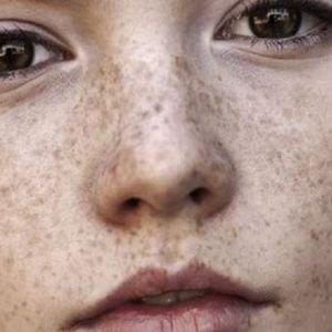 علت ایجاد کک و مک و لکه های پر رنگ پوستی چیست؟