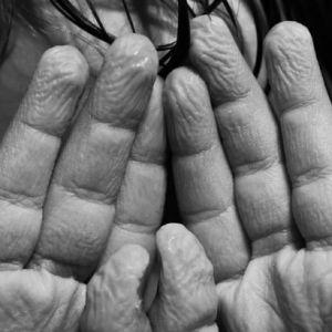 چرا بعد از استخر و حمام پوست دست ها و پاها تغییر میکند؟