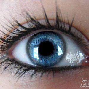 چه عاملی باعث میشود برخی افراد چشمشان دو رنگ داشته باشد؟