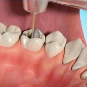 چه زمانی دندانمان به عصب کشی نیاز دارد؟