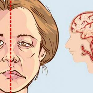 نشانه های مخصوص سکته مغزی زنان