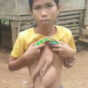 (عکس) دختر عجیب الخلقه فیلیپینی!