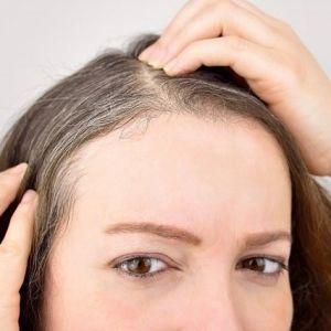 علت سفید شدن مو در جوانی و سنین بسیار کم