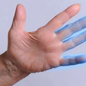 11 بیماری که موجب بی حس شدن دست ها میشود !