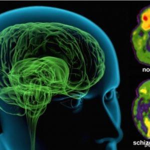 بیماری اسکیزوفرنی مرز بین نبوغ و جنون !