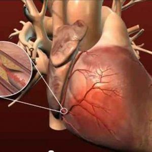 علل کاهش بیماری های قلبی عروقی در زنان نسبت به مردان