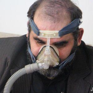 روش درمانی جدید برای مصدومان شیمیایی