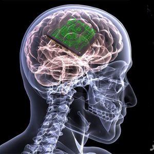 تقویت حافظه انسان با ایمپلنت مغزی