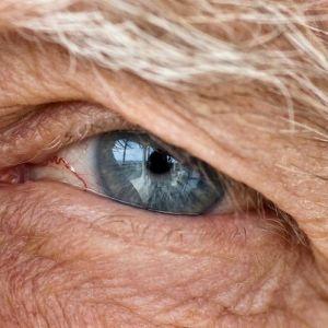 آب سیاه چشم چیست؟
