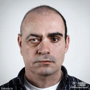 چرا چهره دچار پیری زودرس میشود؟