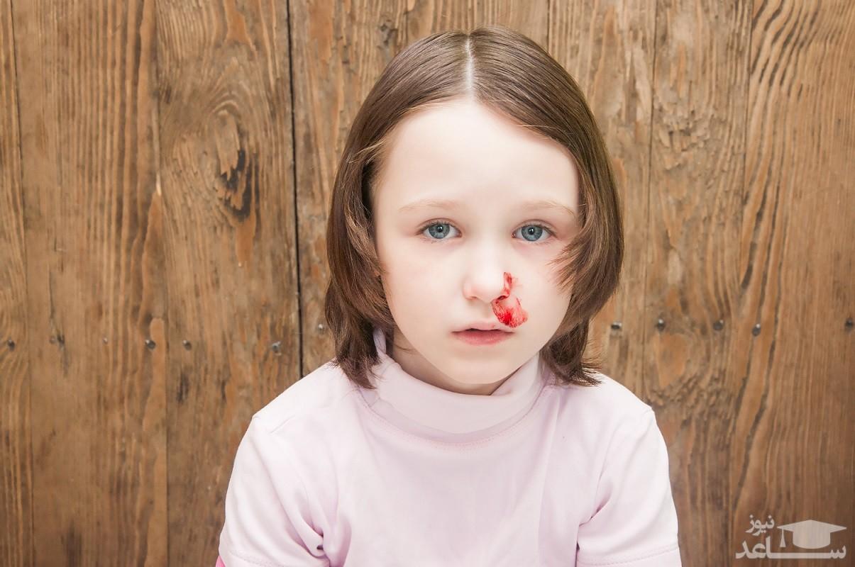 علائم و نشانه های شکستگی بینی کودک
