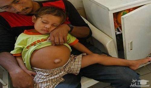 ماجرای حاملگی دختر 3 ساله! + عکس