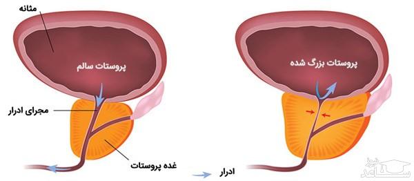 موارد مصرف و عوارض کپسول پروترال