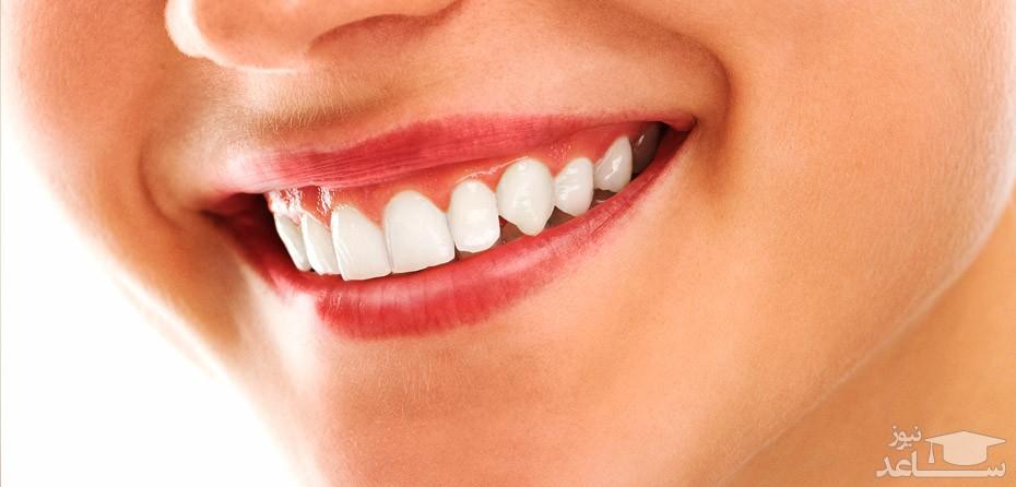درمان مشکلات دهان و دندان در بارداری