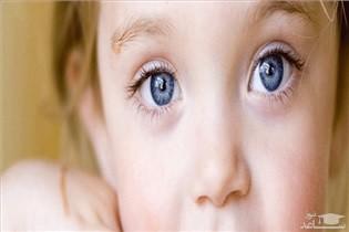 بهترین سن برای درمان انحراف چشم یا لوچی در کودکان