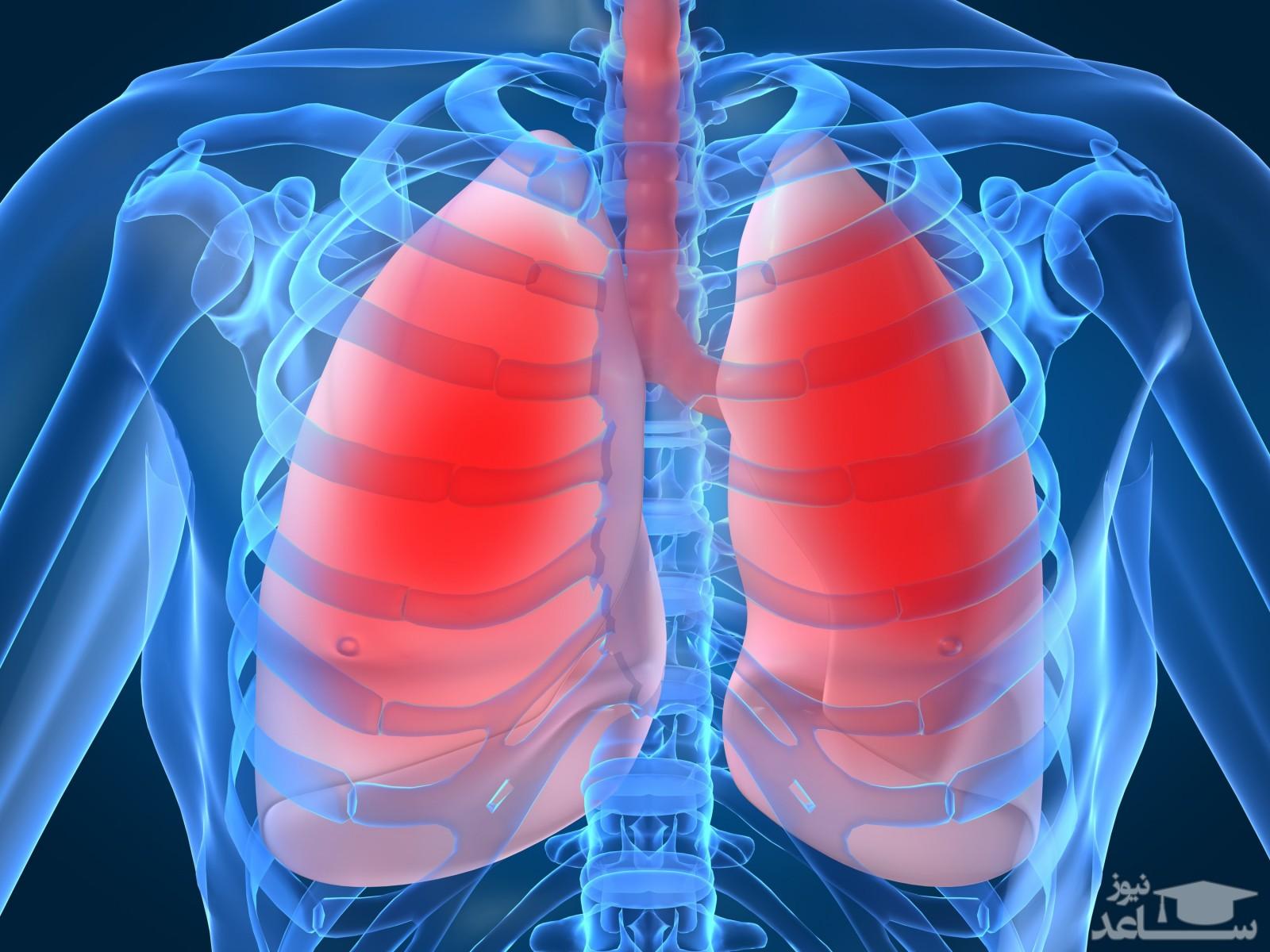 عوارض و موارد مصرف قرص ایروکاست