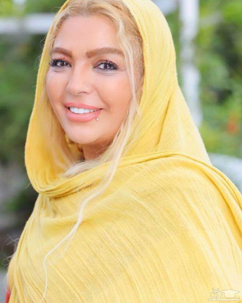 تغییر چهره شهرزاد عبدالمجید