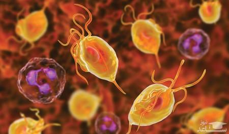 آشنایی با بیماری جنسی و مقاربتی تریکومونیازیس یا تریکومونا