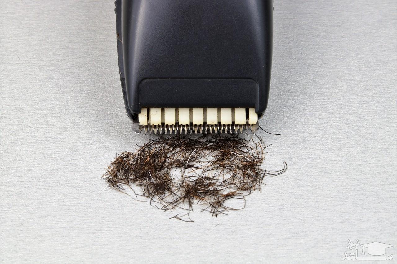 مضرات تراشیدن ، اپیلاسیون و اصلاح موهای زائد ناحیه تناسلی