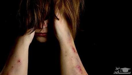 (فیلم) خودزنی دردناک یک زن برای ویزای استرالیا