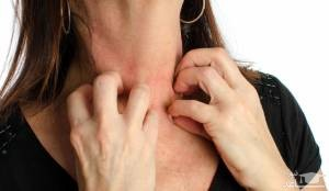علائم قارچ پوستی و راههای درمان آن