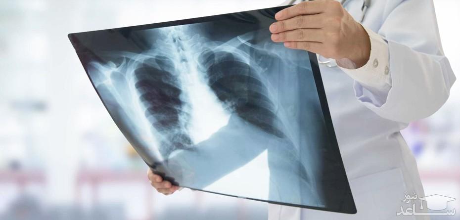 خطرات اشعه ایکس و رادیولوژی در دوران بارداری