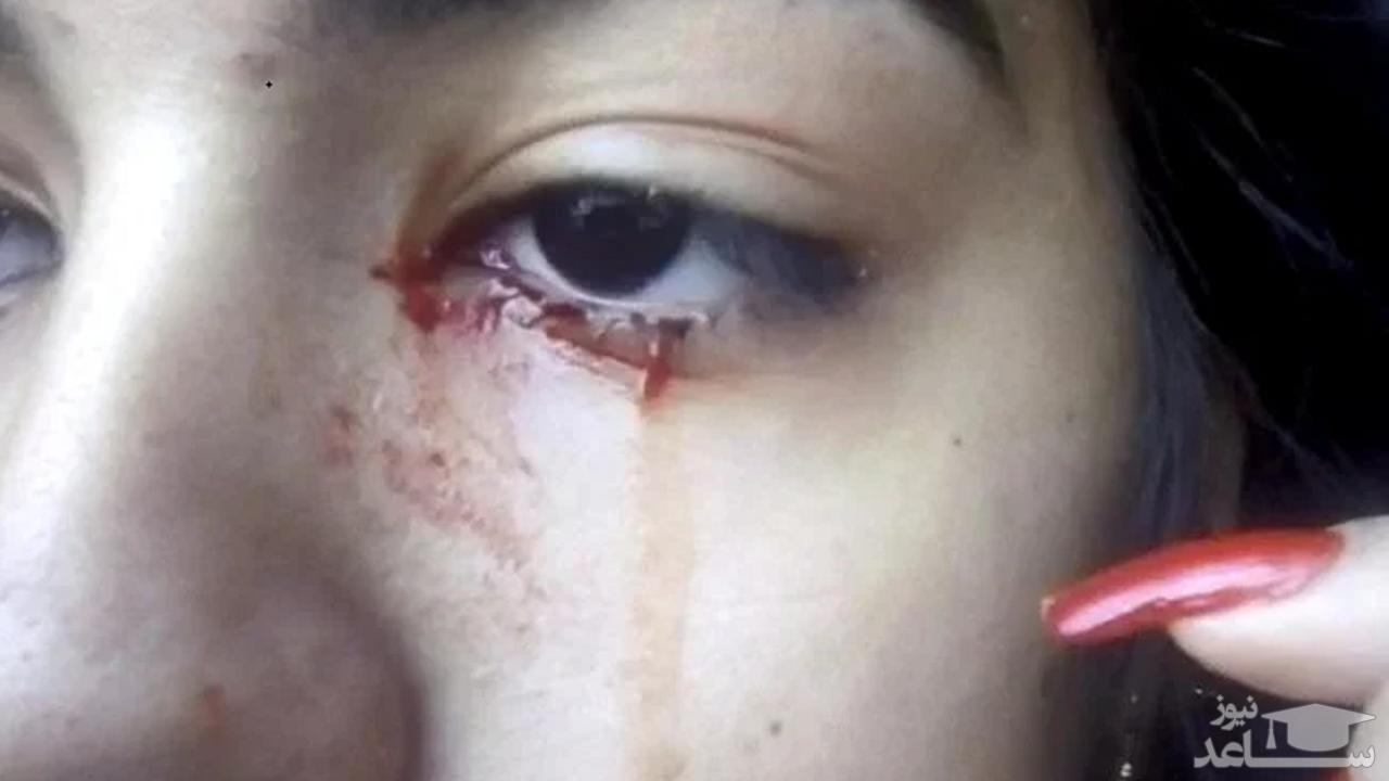 دختری که خون گریه می کند!