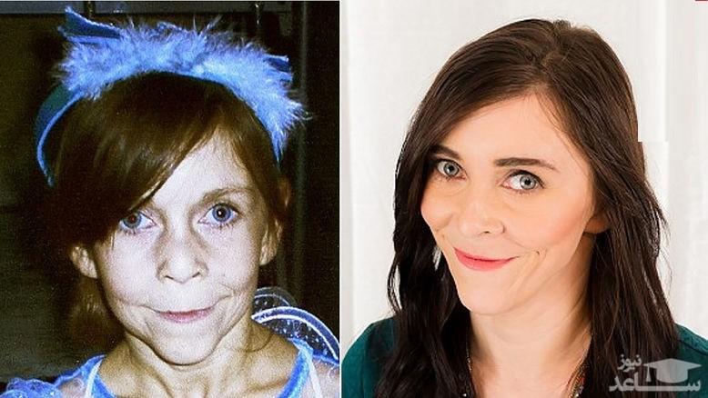 جراحی زیبایی برای دختر جوانی که شبیه پیرزن ها شده است!