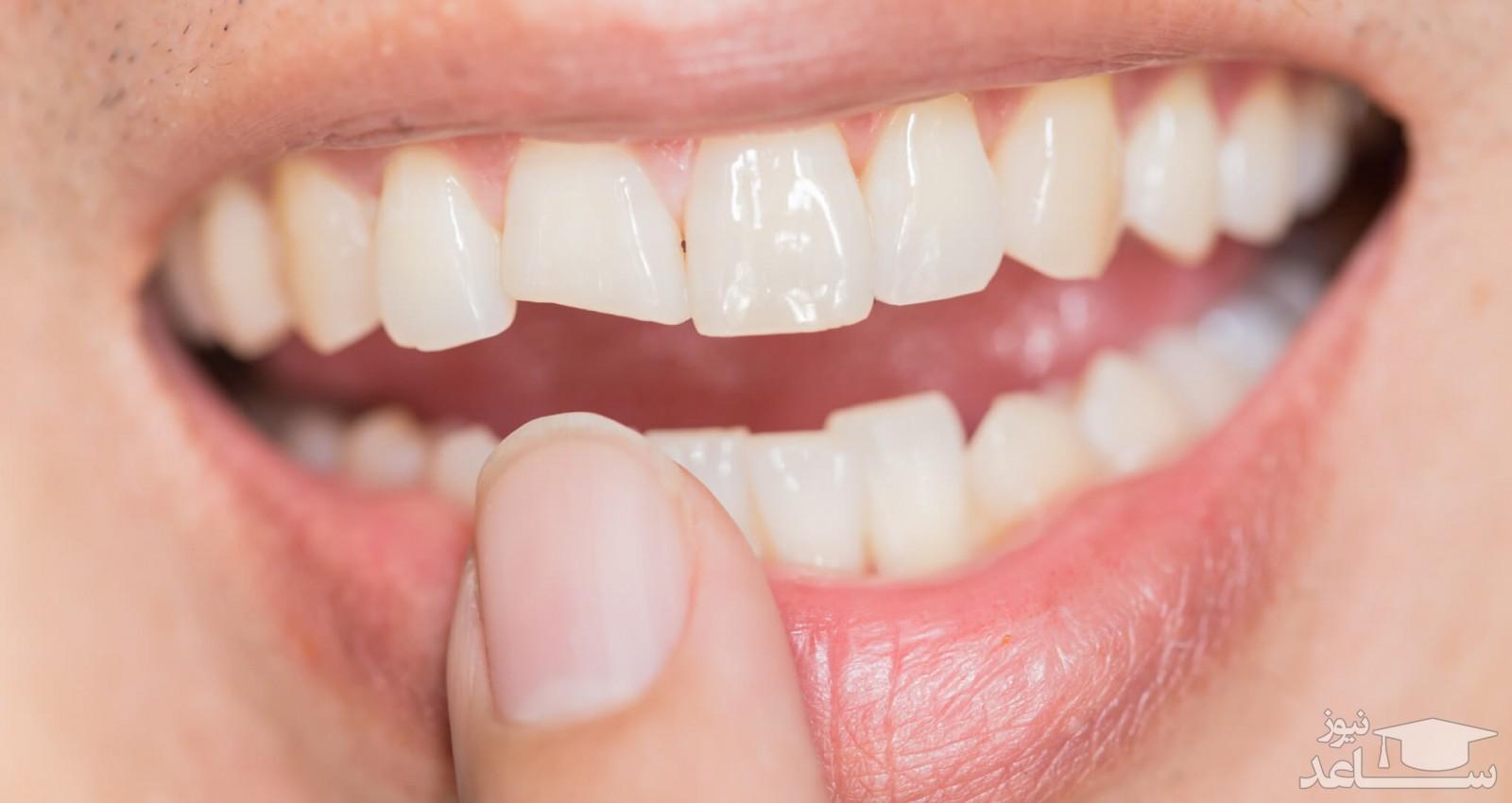 شکستگی دندان و نکات مهم در مورد آن