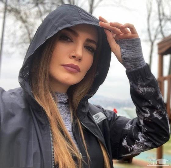 تغییرات جدید چهره متین ستوده