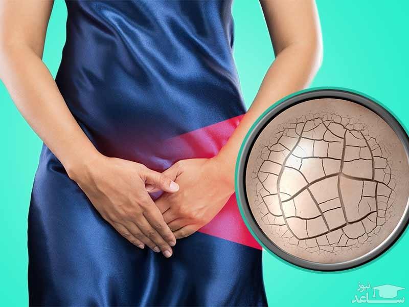 دلایل خشکی واژن در خانم ها و روش های درمان