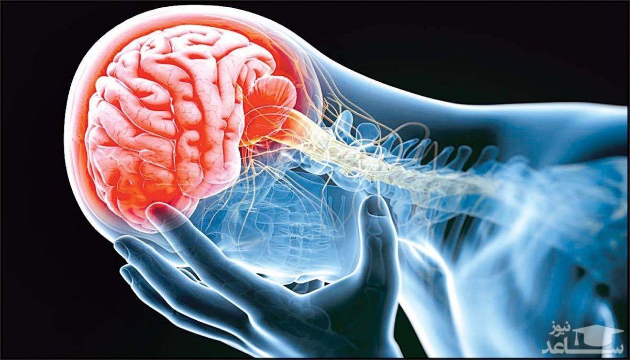 ۳ درصد مبتلایان کرونا به سکته مغزی دچار میشوند