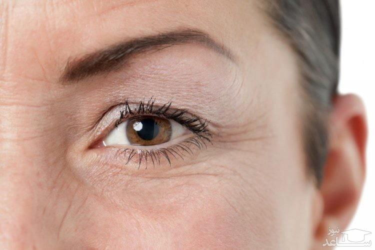 چند نکته در مورد شوره چشم