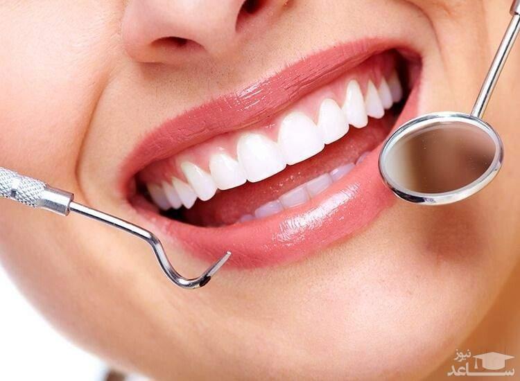 روش های درمان نامرتبی و شلوغی دندان ها