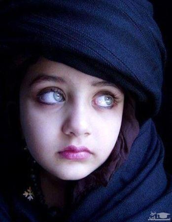 با صاحب زیباترین چشمهای جهان آشنا شوید