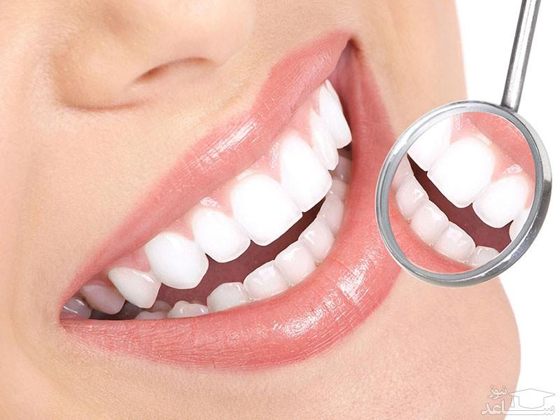 چرا دندان ها جرم می گیرند؟
