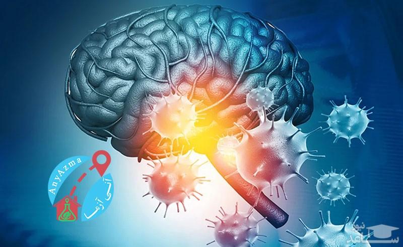 تاثیر ویروس کرونا در ذهن افراد مبتلا
