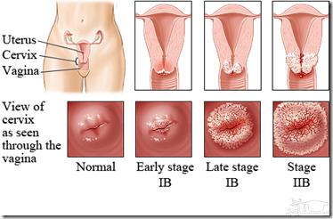 علت ایجاد عفونت های قارچی در واژن ساعدنیوز